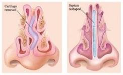 مولاژ بینی با نمایش طبقه عضلانی