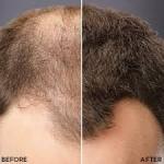 رفع کم پشتی موها با پودر پرپشت کننده مو تاپیک